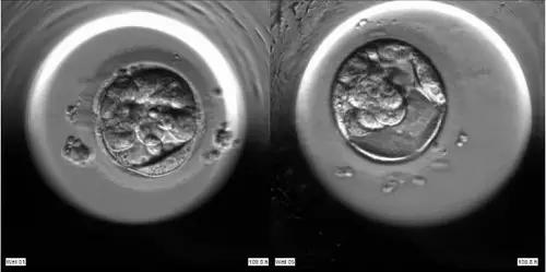 【试管婴儿需多少钱】_第三代试管婴儿移植囊胚的优势