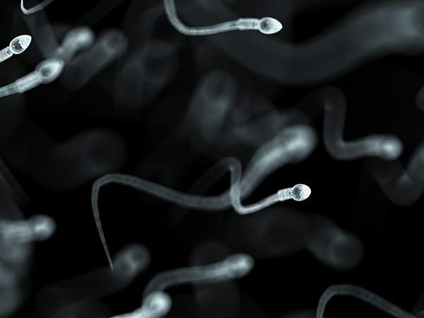 【试管婴儿费用一般要多少钱】_精子畸形=胎儿畸形?