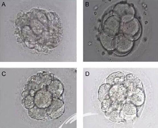 【四川泰国试管婴儿】_美国试管婴儿新鲜周期与冻胚周期的注意事项?