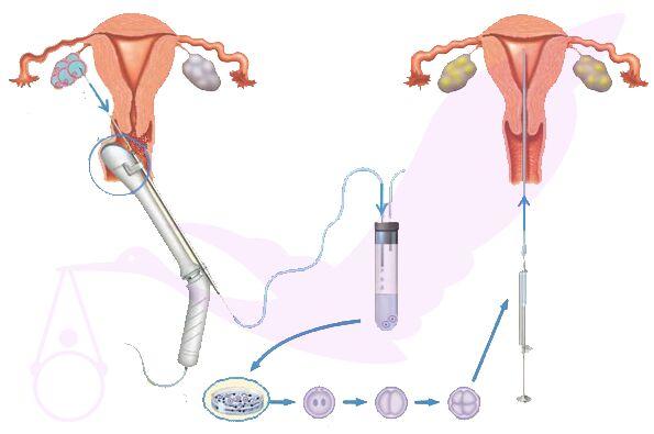 【深圳妇幼试管婴儿】_美国试管婴儿取卵的全过程