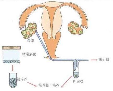 【郑州试管婴儿费用】_试管婴儿对女性卵巢,对婴儿健康和智力有影响吗?
