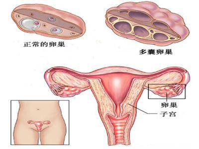 【泰国试管婴儿经历】_女性多囊卵巢综合征能做试管婴儿吗?