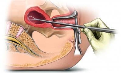 【广东省妇幼保健院试管婴儿】_子宫内膜搔刮术可以改善子宫内膜的容受性,能使试管婴儿妊娠率增加20%