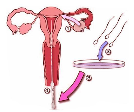 【深圳泰国试管婴儿】_人工授精是怎么完成的?人工授精前需要做哪些准备呢?