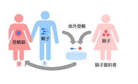 【泰国试管婴儿有哪些好处】_美国新研究确定了实现健康试管婴儿出生的方法