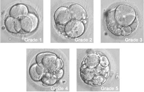 【试管婴儿费用要多少钱】_美国试管婴儿胚胎评级与成功率之间的关系!
