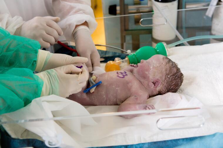 【试管婴儿一般多少钱】_控制性抑制可能影响美国试管婴儿周期结果