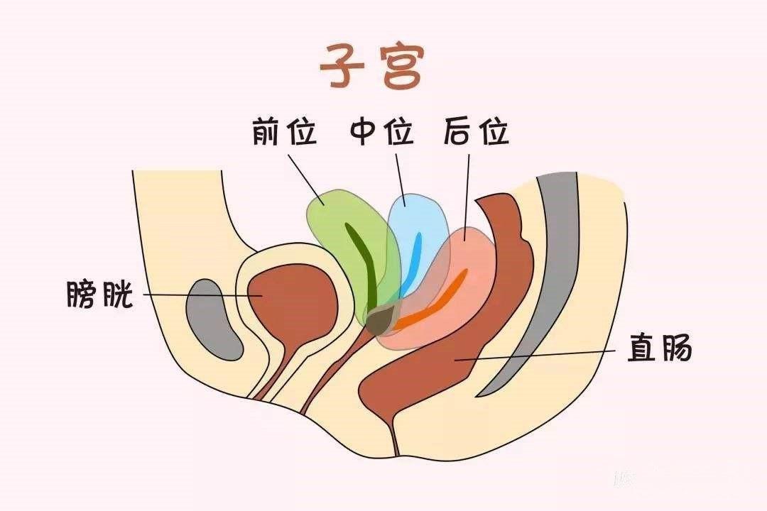 【试管婴儿广东】_子宫后位是不是真的很难怀孕?