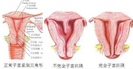【福州试管婴儿多少钱】_CEF泰国助孕:有子宫纵膈压力山大?别自己吓自己啦